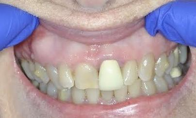 Crowns-Cosmetic-Dentistry-Before-Image