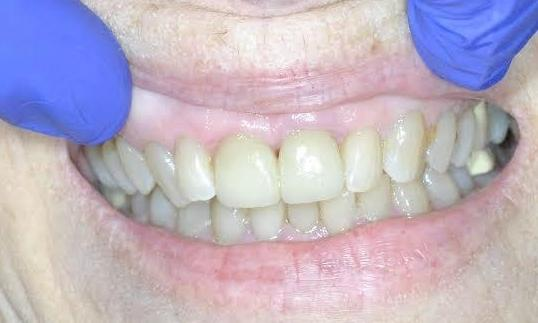 Crowns-Cosmetic-Dentistry-After-Image